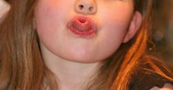 Hét éves kisfiamnál nyelvlökéses nyelést állapítottak meg. Mi lehet ennek az oka? Félek, hogy valamire nem figyeltem fel időben, és megelőzhető lett volna a baj. Négy éves lányomnál nem szeretném ugyanazt a hibát elkövetni.